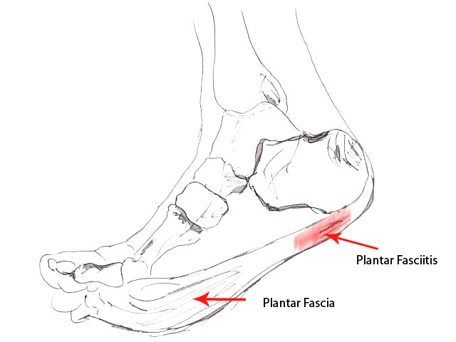 Treating Plantar Fasciitis in Bolton with Deansgate Osteopathic Clinic