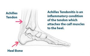 Sports injury treatment for achilles injury in Bolton