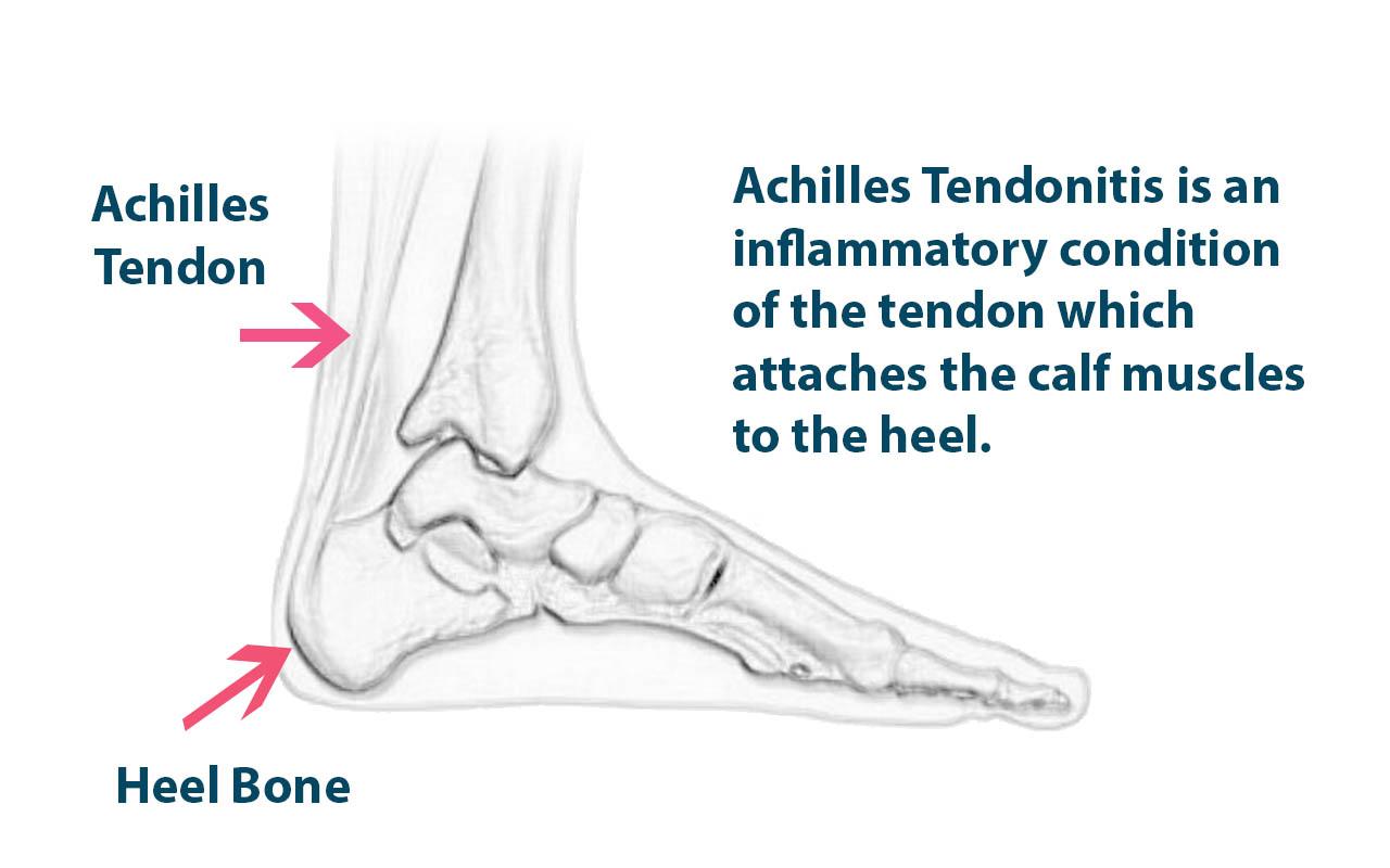 achilles tendon injury study notes No notes for slide retrospective analysis on mini-open technique for achilles tendon following mini-open repair of achilles tendon rupture: a prospective study.