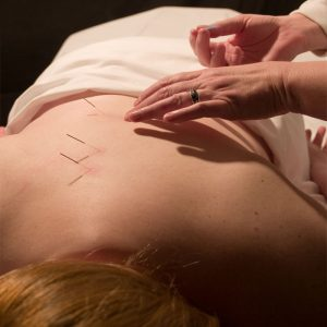 Acupuncture In Bolton