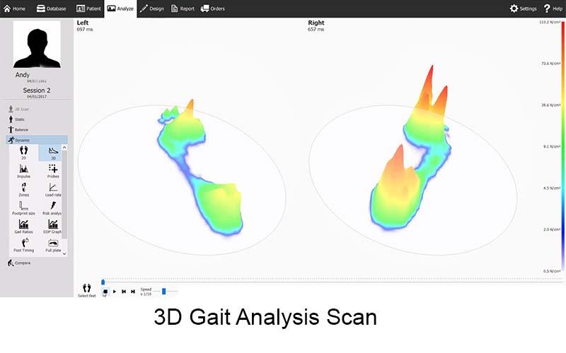 Gait Analysis And Custom Orthotics Bolton