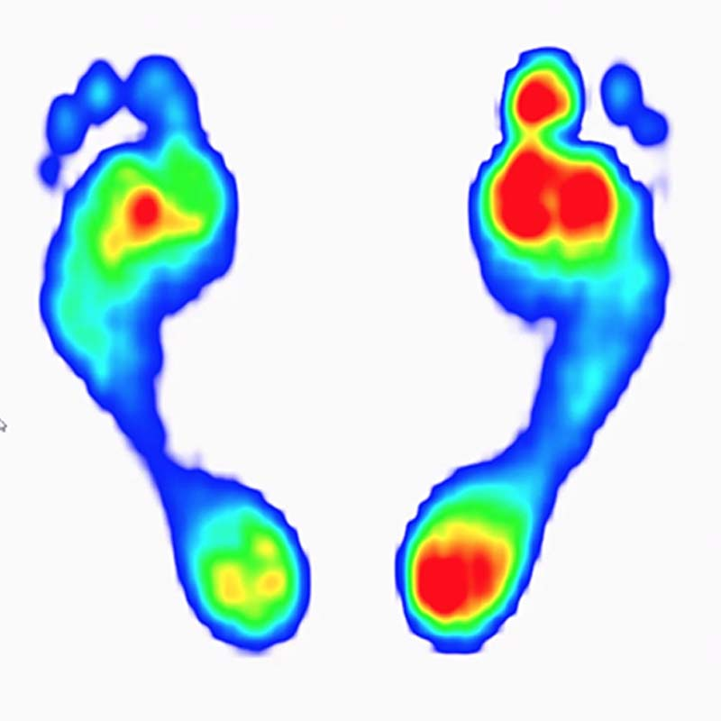 Dynamic Gait Analysis And Custom Orthotics