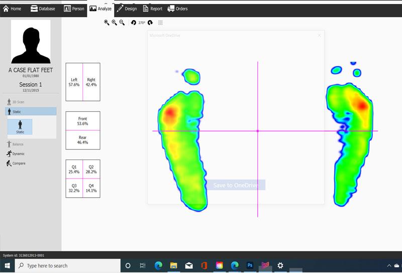 Flat feet image