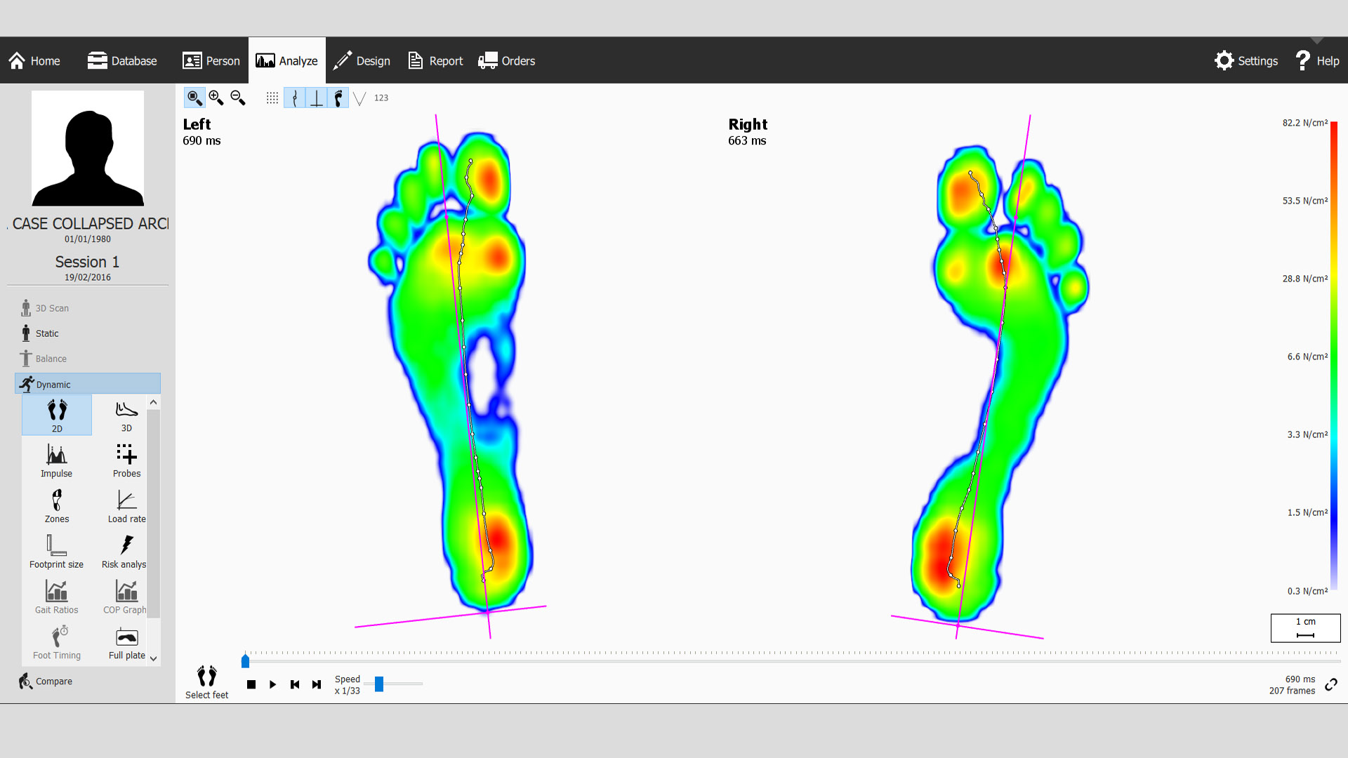 Gait Analysis for Collapsed arches