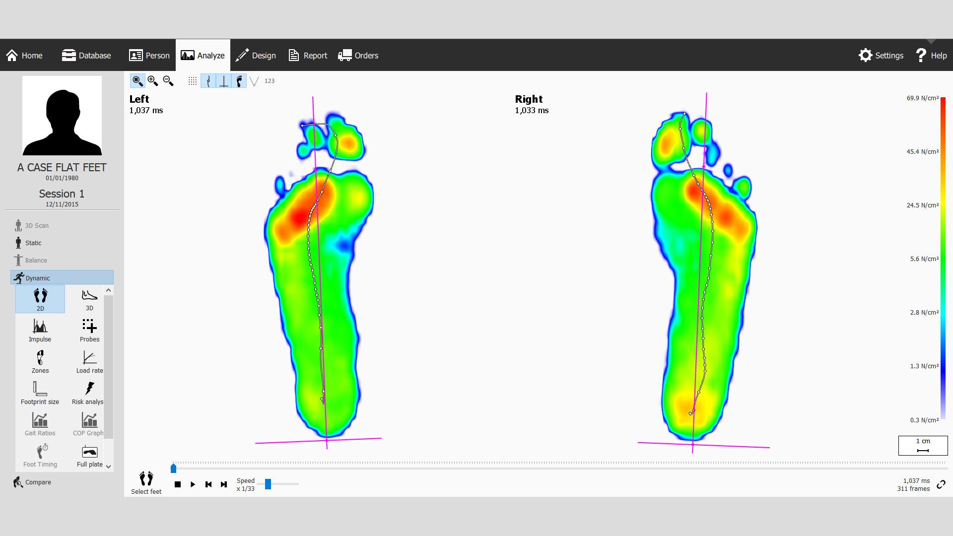 Gait Analysis for Flat Feet