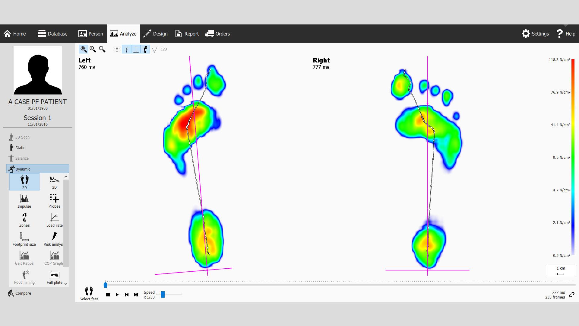 Dynamic Gait Analysis Plantar Fasciitis